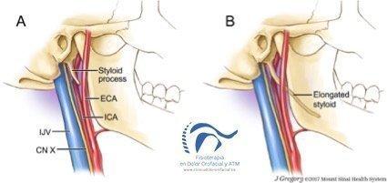 Síndrome de eagle. ¿qué es? Principales características y tratamientos.
