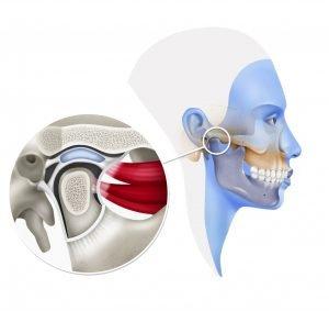 Articulación temporomandibular, disco articular