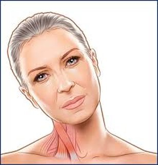 Distonía cervical (Torticolis Espasmódica Cervical)