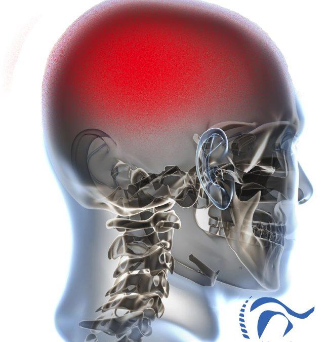 Migraña Crónica y Síndrome de Dolor Regional Complejo