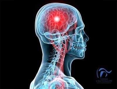 Cefalea Tensional. Tipos de Cefalea Tensional Y Tratamiento.