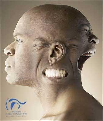 Dolor cervical y de mandíbula: relaciones