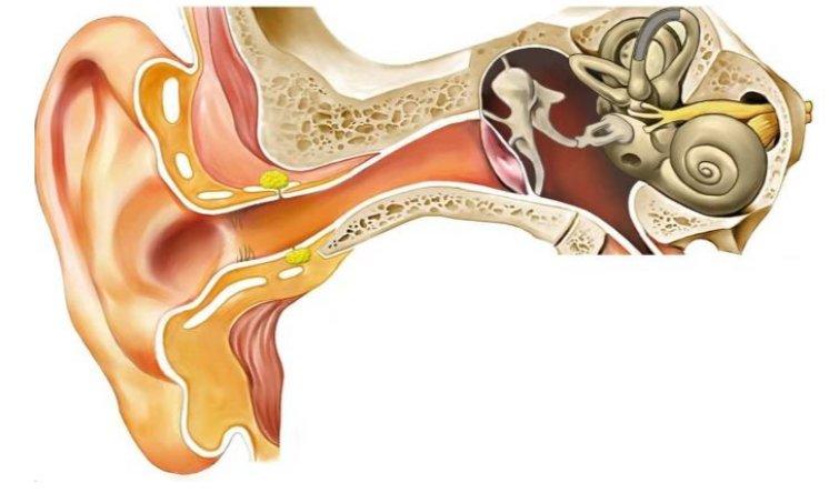 Otalgia secundaria o dolor de oído
