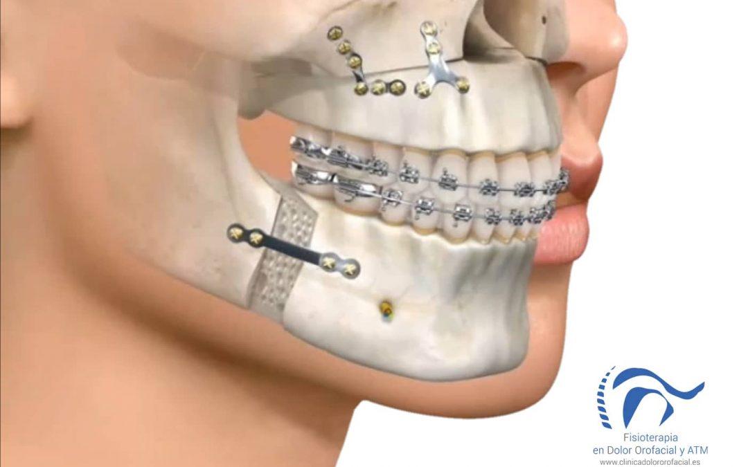 Cirugía Maxilofacial: ¿Qué pueden hacer los pacientes cuando están recién operados?